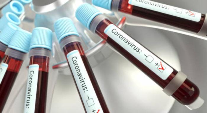 立花孝志が「コロナは風邪」新型コロナウイルスに感染「とにかく元気」